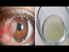 Picaturile de ochi care dizolva cataracta in mod naturale fără operatie! - YouTube Glass Of Milk, Youtube, Youtubers, Youtube Movies