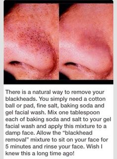 Natural Way To Remove Your Blackheads FAST
