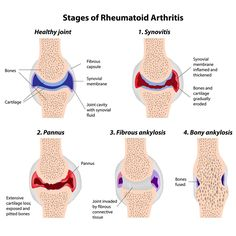 Rheumatoid arthritis  and joint pain http://www.rodalesorganiclife.com/wellbeing/reasons-your-joints-hurt/slide/6
