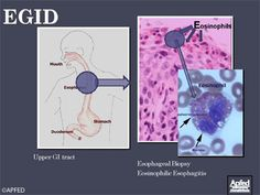 """APFED (American Partnership For Eosinophilic Disorders): """"What is Eosinophilic Esophagitis""""  Be sure to see their videos and webinars, as well as resources for people dealing with EoE/EGID."""