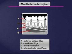 Cancellous Bone, Space Between Teeth, Maxillary Sinus, Nasal Septum, Dental Anatomy, Tooth Chart, Nasal Cavity, Dark Images, Dental Hygiene