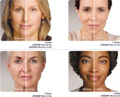 As we age, our skin changes. Over time, the natural volume of youthful skin begins to diminish as wrinkles and folds form. You don't have to just sit back and let it happen! Injectible fillers, like Juvéderm and Restylane, are used to restore volume and fullness to the skin, and smooth away facial wrinkles and folds. We can help you look extra special for your daughter's special day.