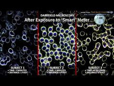 "▶ Shocking ""Smart"" Meter Effects On Human Blood - 2:42, YouTube, William Thomas online:"
