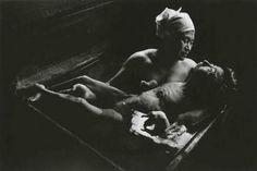 Mercury deaths | மெர்குரி மரணங்கள்...! உலகை உலுக்கிய புகைப்படங்கள்! (மினி தொடர்: பகுதி-4)