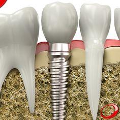 La durabilité des implants dentaires peut varier, mais en général, le traitement a un taux de réussite qui atteint les 98%. .................... www.pnid.fr #dentiste #implants#sourire#clinique (Pour plus d'informations ou pour organiser une consultation d'évaluation, envoyez vos coordonnées par message privé)