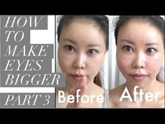 Shiatsu Massage How to Make Your Eyes Bigger Without Makeup or Plastic Surgery Face Plastic Surgery, Make Eyes Bigger, Acupressure Treatment, Acupuncture, Facial Yoga, Facial Cupping, Face Exercises, Face Massage, Without Makeup