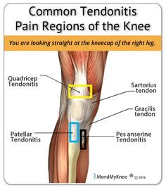 Common areas of the knee that are afflicted with tendonitis. The quadriceps and area below the knee cap are the two most common regions. Knee Ligament Injury, Patellar Tendonitis, Knee Ligaments, Knee Osteoarthritis, Knee Injury Treatment, How To Strengthen Knees, Runners Knee, Knee Arthritis, Rheumatoid Arthritis