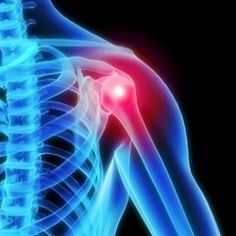 How To Reduce Joint Pain Using Daily Supplements - Supplements To Relieve Joint Pain | Arthritis Treatment and Natural Cure