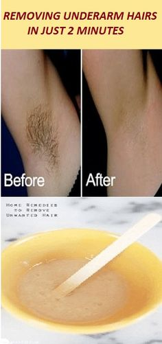 REMOVING UNDERARM HAIRS IN JUST 2 MINUTES