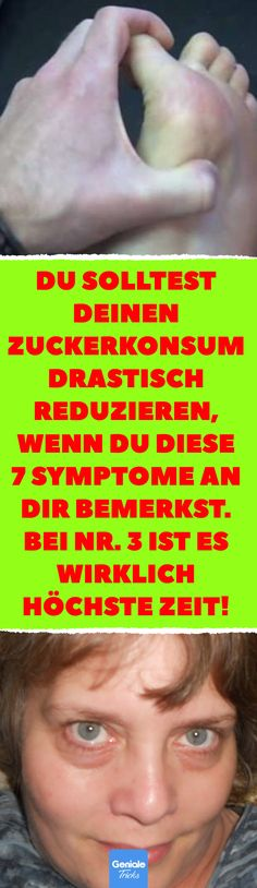 Du solltest deinen Zuckerkonsum drastisch reduzieren, wenn du diese 7 Symptome a… You should drastically reduce your sugar intake if you notice these 7 symptoms on you. it is really high time! These symptoms indicate too much sugar in the food. Fitness Workouts, Fitness Tips, Gut Health, Health Eating, Health Fitness, Health 2020, Diabetes, Sugar Consumption, Sugar Intake