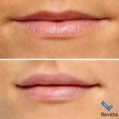 Juvederm lip enhancement - the secret to a fresher Facial Fillers, Botox Fillers, Dermal Fillers, Lip Fillers, Cosmetic Clinic, Cosmetic Procedures, Lip Injections, Lip Plumper, Facial Aesthetics