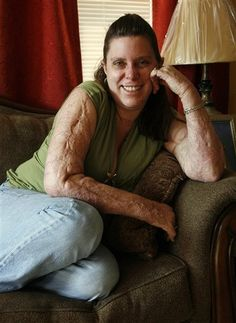 Linda Fisher, who was severely burned in The Station nightclub fire