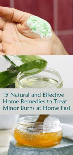 15 Effective Home Remedies to Treat Minor Burns at Home Fast Natural Health Tips, Natural Health Remedies, Natural Cures, Herbal Remedies, Wellness Tips, Health And Wellness, Health Care, Home Remedies For Burns, Natural Teething Remedies