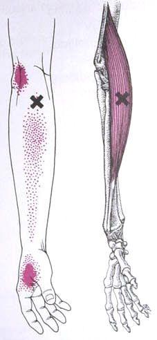 Brachioradialis Trigger Point Diagram