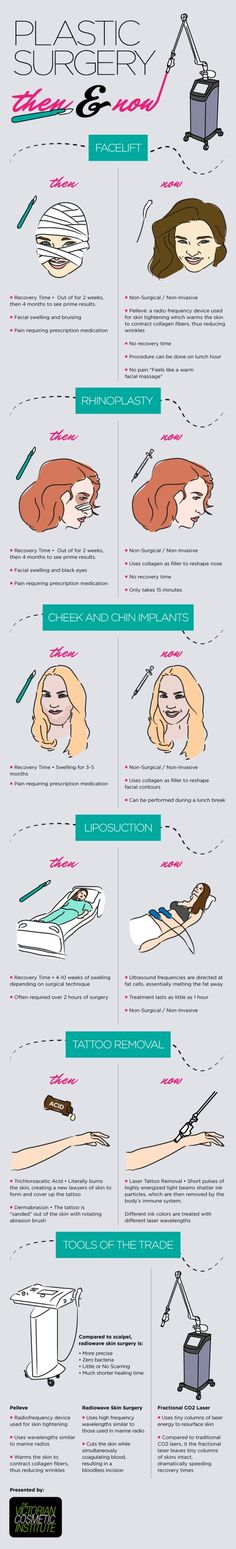 Plastic Surgery had definitely evolved over the past few decades!  |  Pinned by NewGel+ for Scars www.newgelplus.com
