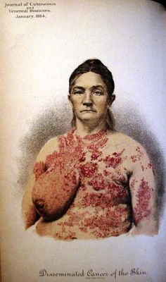 Journal of Cutaneous and Venereal Diseases, 1884
