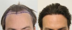Hair Transplant Doctor in India If you are worried about your hair fall than you should consult with the Hair transplant Doctor in India. Dr.Ashish Davalbhakta is the best Hair Transplant Doctor in India. http://www.aestheticsmedispa.in/cosmetic-surgeries/face/hair-transplant.html
