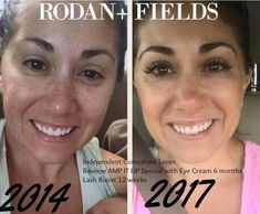 """Wow!! Check out Loren's STUNNING results using our amazing Rodan + Fields products! Consistency is key! 😍  """"This morning I was going through old pics and came across this pic from 2014. To be fair, I do have peptides and mascara on in the recent pic but there has clearly been an improvement in my skin!! The funny thing is that back then I didn't think I had """"bad skin."""" It just goes to show that there is always room for improvement!"""""""