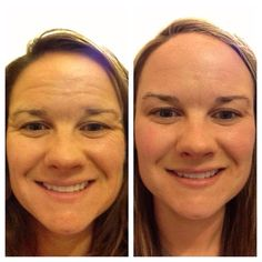 People love seeing these before and afters so here is another one! Oct 28, 2013 to May 9, 2014...Using Unblemish in the mornings for acne control and Redefine at night for anti-aging! Macro Exfoliator once a week, Redefine Multi-Function eye cream 2x a day, Microdermabrasion paste 1-2 times a week & the AMP MD a handful of times!! If you'd like to see these results, email me at pjferg1999@gmail.com.