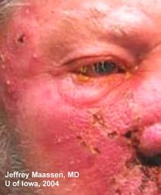 Vessicular lesions, V2 - Herpes