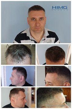 Simig Balázs - 6000 hajszál beültetése - HIMG Klinika  Balázs a homlokánál kopaszodott. Ez a terület pici volt ugyan, de a sebészeink extrém sűrűre varázsolták, hogy elérjék a természetes kinézetet. A beavatkozást a HIMG Klinika orvos csapata végezte el.  http://hajgyogyaszatszeged.hu/