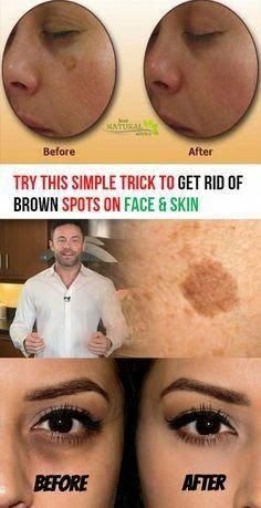 hair removal permanent facials: Try This Simple Trick to Get Rid of Brown Spots on Face & Skin Black Spots On Face, Age Spots On Face, Brown Spots On Skin, Skin Spots, Dark Spots, Brown Skin, Facial Brown Spots, Face Age, Looks Dark