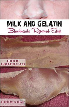 Blackheads Remedies Milk and Gelatin Blackheads Removal Strip - 10 Simple Blackhead Removal Tips, Tricks and DIYs Beauty Tutorials, Beauty Hacks, Beauty Tips, Diy Beauty, Beauty Secrets, Skin Secrets, Homemade Beauty, Beauty Ideas, Beauty Care