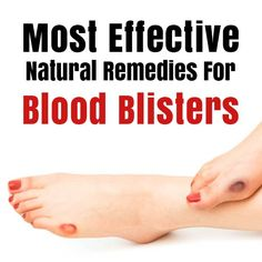 Blood Blisters Remedies