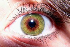 Example of central heterochromia.