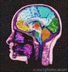 Mosaic of a brain MRI (sagittal view) composed from tiles of various medical images.