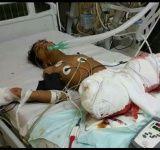 #موسوعة_اليمن_الإخبارية l 68 مدنيا قتلهم الحوثيون في تعز خلال أغسطس الماضي