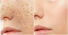 The open pores will disappear from your skin forever in just 3 days. We all have millions of skin pores on our skin but they are not visible with naked eye but as your get older or sometimes becaus… Beauty Care, Diy Beauty, Beauty Hacks, Skin Toner, Oily Skin, Skin Tag, Facial Care, Tips Belleza, Skin Treatments