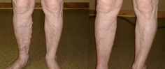 Veincare is a trusted clinic that helps you to get a specialized endovenous laser treatment Melbourne, treatment for varicose veins. visit : http://www.veincare.com.au/endovenous-laser-treatment-evlt/