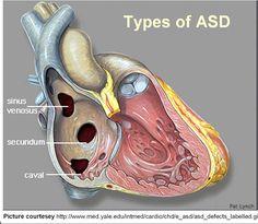 Cardiology For You: Atrial Septal Defect