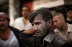 Survivant d'une frappe en Syrie | Credit: Marco Longari