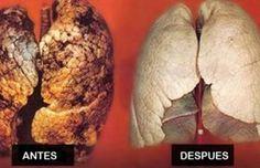 Sigue estos consejos naturales que te ayudarán a purificar tus pulmones