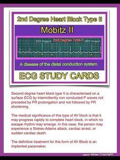 ECG - 2nd Degree Heart Block (Type 2)
