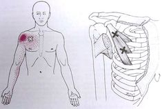 Myofascial trigger points - great resource to see them!   Fingers numb??  Shoulder hurt?