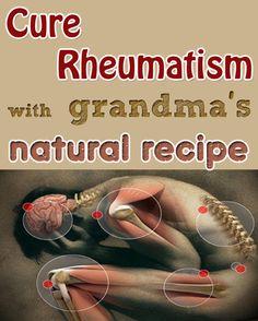 Cure Rheumatism With Grandma's Natural Recipe