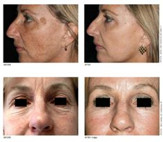 The types of Laser Resurfacing Treatments we offer are Active FX, Deep FX, Total FX, & Pigment FX. (above are the before and after pictures)