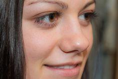 6 rimedi naturali per ridurre le occhiaie
