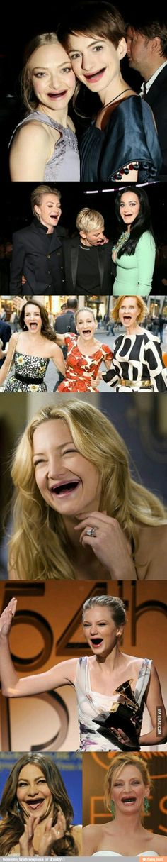 omg I saw this on Ifunny and I couldn't stop laughing, celebrities with no teeth