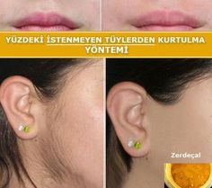 Unwanted hairs on the face and arms are used in homemade .- Yüz ve kollardaki istenmeyen tüylerden ev yapımı yöntemle kurtulma Getting rid of unwanted hair on face and arms by homemade method - Natural Hair Removal, Ipl Laser Hair Removal, Hair Removal Diy, Hair Removal Methods, Upper Lip Hair, Cure, Best Hair Removal Products, Beauty Products, Hair Removal Devices