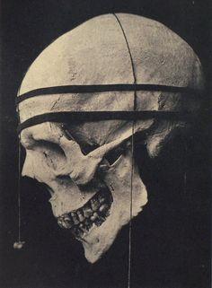 ca. 1885, cranial measurement system