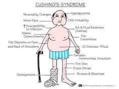 ABC Medicine: Cushing's Syndrome
