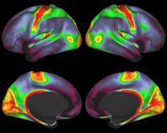 The Brain, in Exquisite Detail - The New York Times  Myelin-coated nerve fibers are very important in connectivity. Areas in red and yellow have high myelin content; darker areas have lower content. Credit M. F. Glasser and D.C. Van Essen for the WU-Minn HCP Consortium