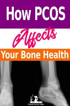 Did you know that PCOS Affects Bone Health? - Polycystic ovaries can have long term effects on your health - find out more here #naturalearthymama