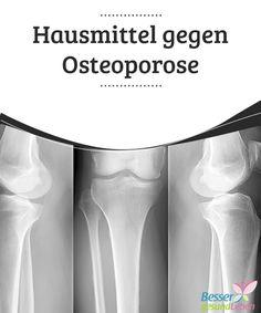 Hausmittel gegen Osteoporose Probieren Sie verschiedene Hausmittel gegen #Osteoporose wie zum Beispiel eine #kaliumreiche Ernährung aus. Treiben Sie zudem ausreichend #Sport! #NatürlicheHeilmittel