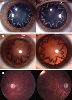 Visualization of Bilateral Cataracts and Optic Neuropathy Secondary to an Electrocution Injury. Arch Ophthalmol. 2011;129(10):1290. doi:10.1001/archophthalmol.2011.203.