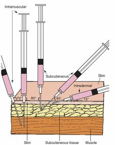 Injection Sites